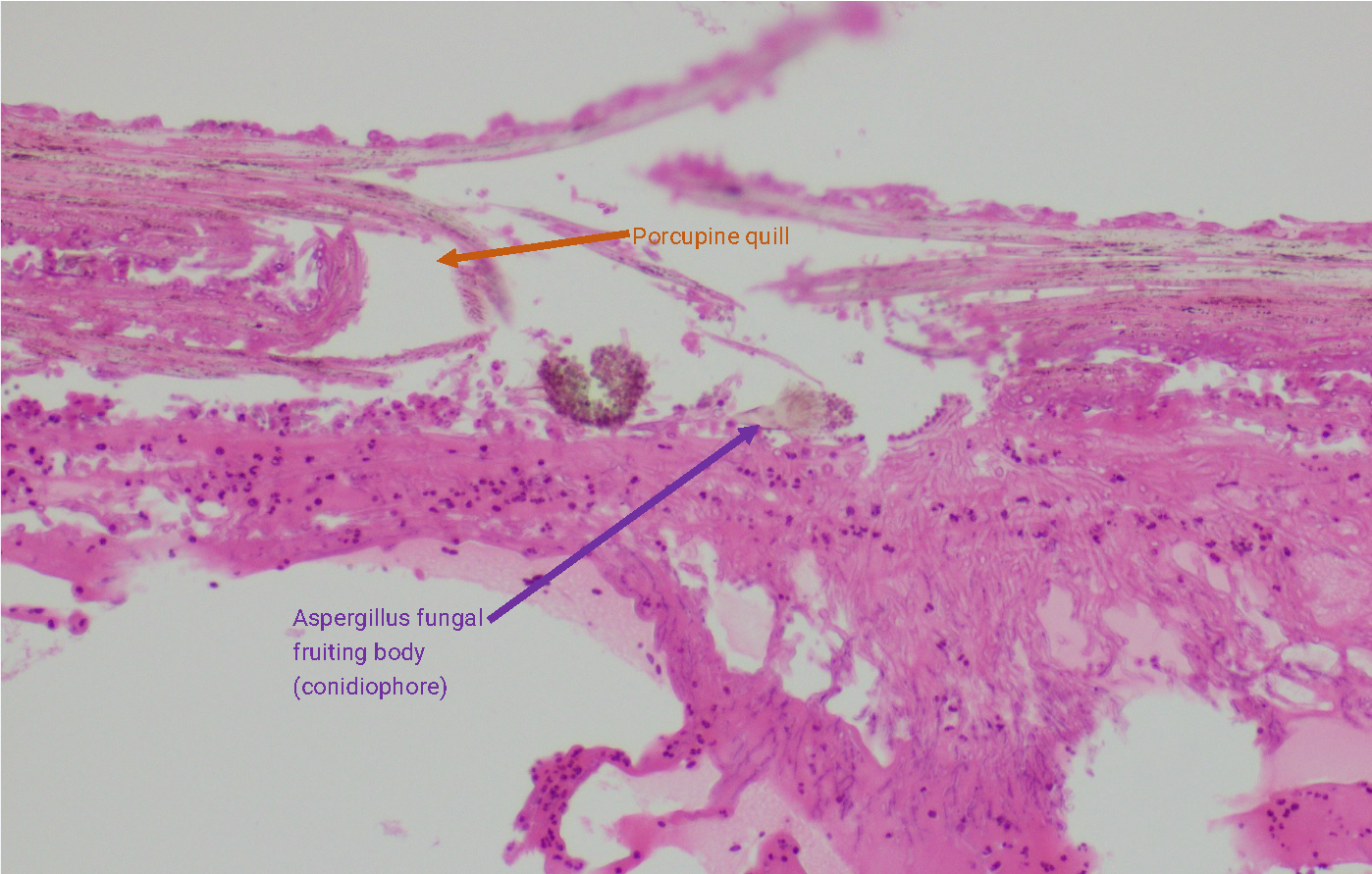 Histopathology slide with notation
