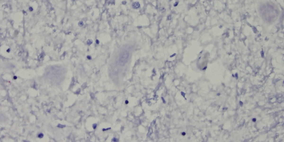 Histo slide of negative neuron test result