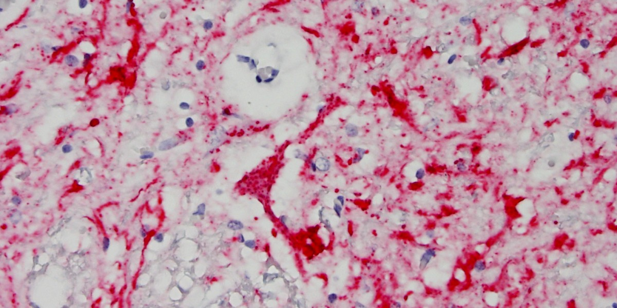 Histo slide of positive neuron test result